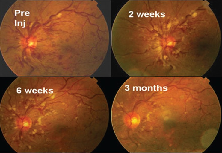 Figure 4: Serial fundus photographs pre and postbevacizumab injection in a patient