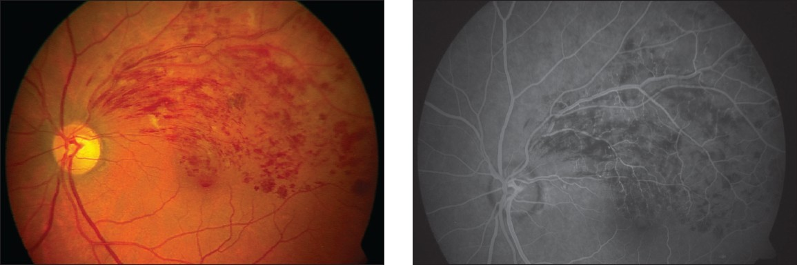 Figure 3A: Fundus photograph showing rebound effect three months after intravitreal bevacizumab in branch retinal vein occlusion