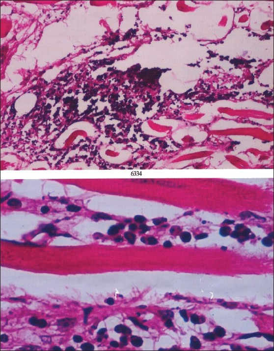 Figure 5: Microscopic examination of extra orbital tissue shows focal loose nodular collections of mononuclear inflammatory cells in the interstitium of skeletal muscle associated with fibrosis and fat infiltration with absence of Ganglion such as cells, atypical cells, specific granulomas or phagocytic cells