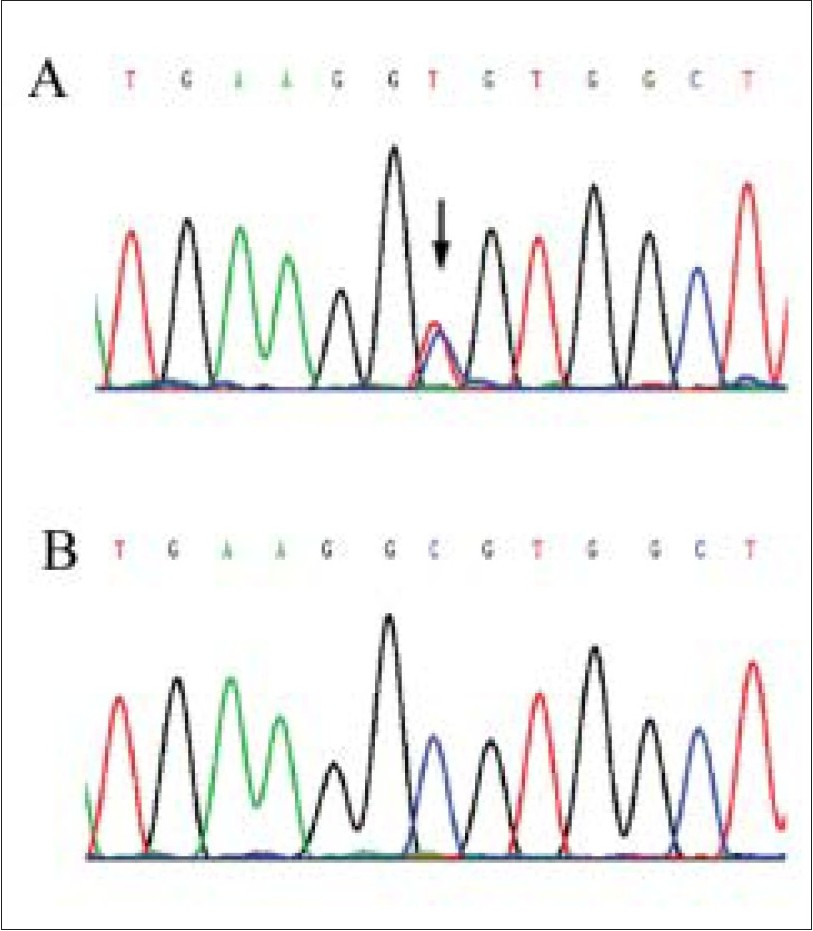 Figure 2 :Sequence analysis of VMD2 (A) The arrow indicates the heterozygous mutation of C to T change at nucleotide 584 (Ala195Val), (B) No equivalent mutation is detected in the subject's son or control subjects
