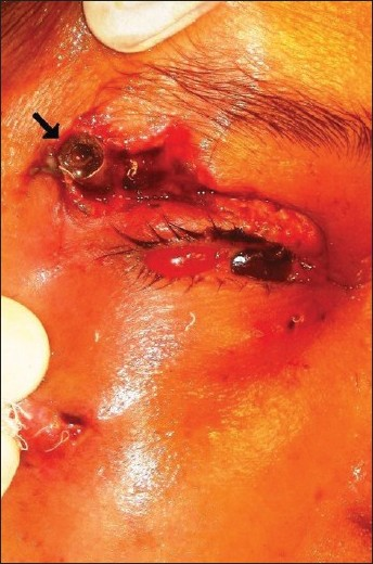 Figure 1 :Impacted pressure cooker nozzle (arrow) in the right eye