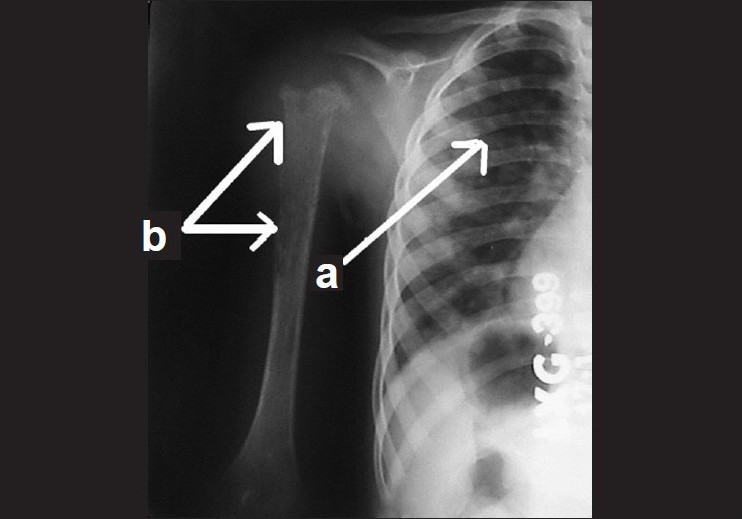 Figure 4 :X-ray of the chest (a) and right shoulder joint (b) showing metastatic changes