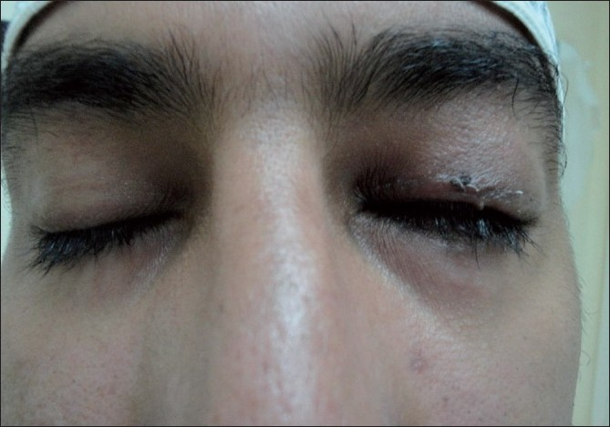 Figure 5 :Postoperative finding showing ability of the patient to close his eye