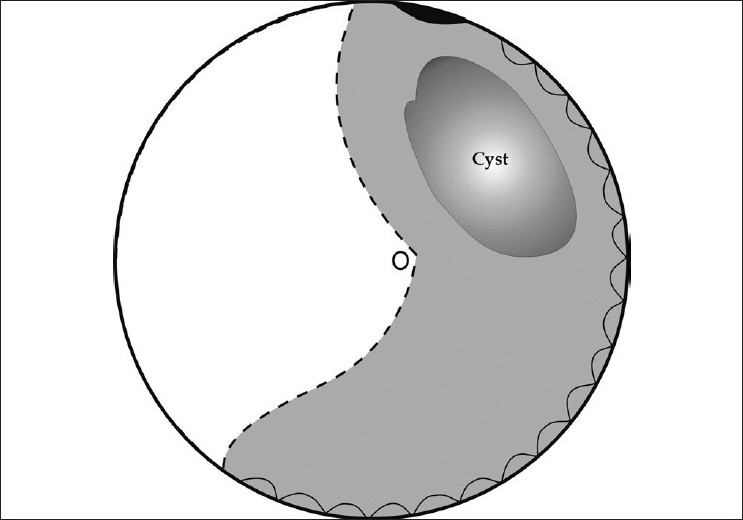 Figure 2: Schematic representation of the fundus appearance of the right eye at presentation. White area denotes attached retina. Light grey area denotes detached retina. Dark area denotes retinal dialysis. Stippled line denotes demarcation line. Shaded area denotes hemorrhagic intraretinal macrocyst
