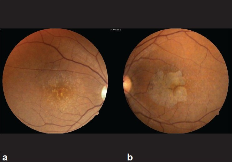 Figure 1: (a) Fundus photographs of right eye (b) left eye