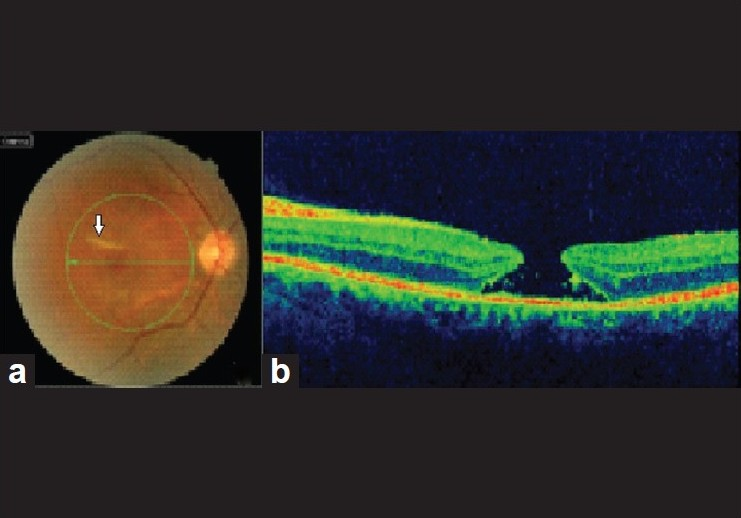Figure 1: At presentation: (a) Color fundus photograph of the right eye reveals a choroidal rupture (arrow) and a full thickness macular hole. (b) Optical coherence tomography scan confirms the presence of the macular hole