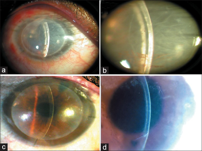 Figure 3: (a) Case (2) Fuchs dystrophy. (b) Same case with air bubble filling the 50% of AC, immediate photo after Descemet stripping automated endothelial keratoplasty. (c) Same case with clear cornea after 1month postoperatively. (d) Same case with Schiempflug photo of Pentacam at 0-180degree section, 1year after surgery