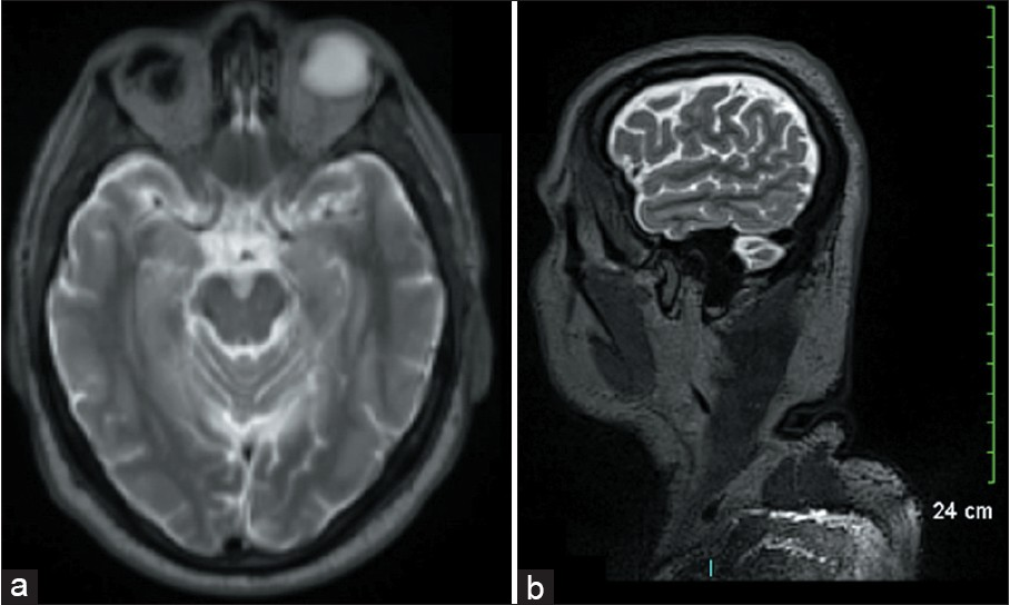 Figure 4: Magnetic resonance imaging T2-weighted images: the hyperintense peripheral area being important and inhomogeneous, it suggests an intense inflammation with risks of definitive visual damages