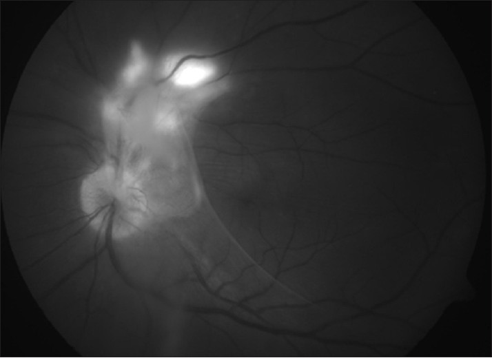 Figure 3: Red-free fundus photograph showing spontaneous contraction of posterior vitreous face and lifting of epiretinal membrane with healing of retinochoroiditis lesions