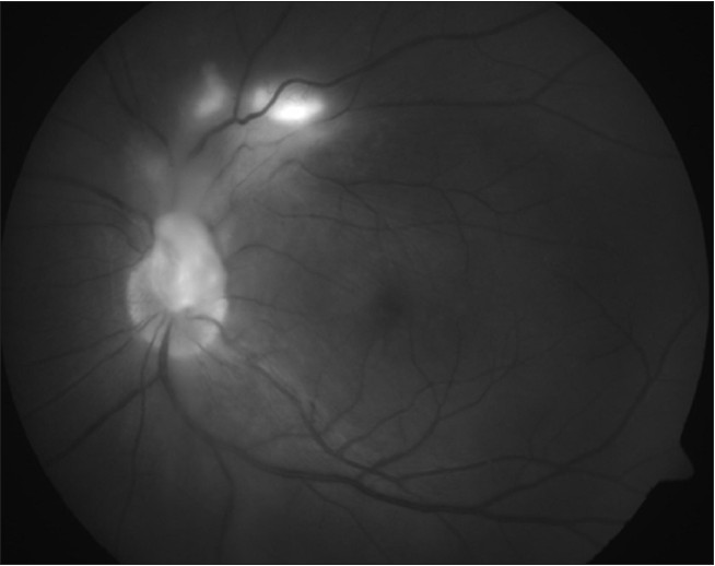 Figure 4: Red-free fundus photograph showing near-complete healing of retinochoroiditis lesions and total regression of epiretinal membrane