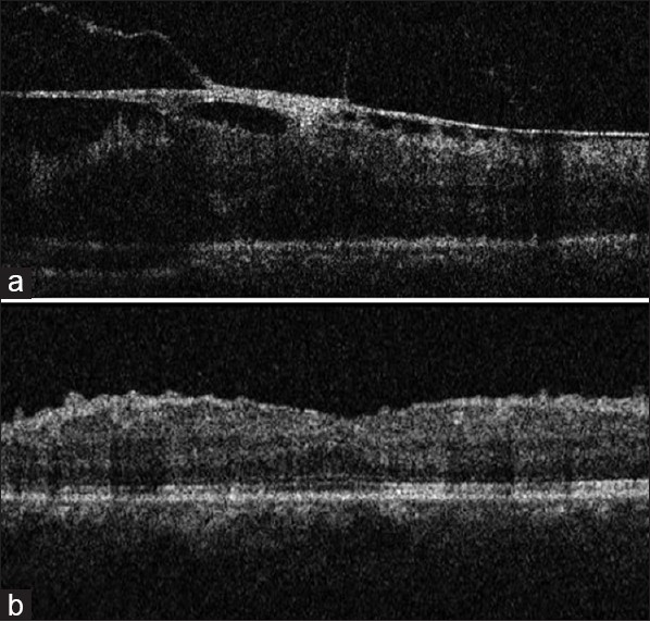 Figure 5: OCT scans of left eye showing (a) incomplete posterior vitreous detachmentwith thick epiretinal membrane and associated retinal thickening anddistortion and (b) absence of epiretinal membrane with residual wrinklingofinternal limiting membrane and significant resolution of retinal thickening