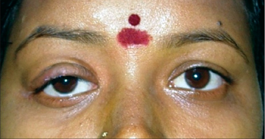 Figure 7: Patient after squint and ptosis correction showing good cosmesis