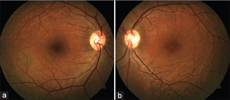 An Unusual Pattern Of Idiopathic Choroidal Folds Goel N Kumar V Raina UK Ghosh B