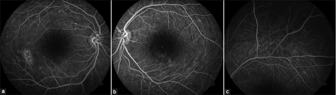 Figure 2 A Fluorescein Angiography Of The Right Eye Showing Window Defect Corresponding To Area Pigmentary Disturbance Choroidal Folds Are