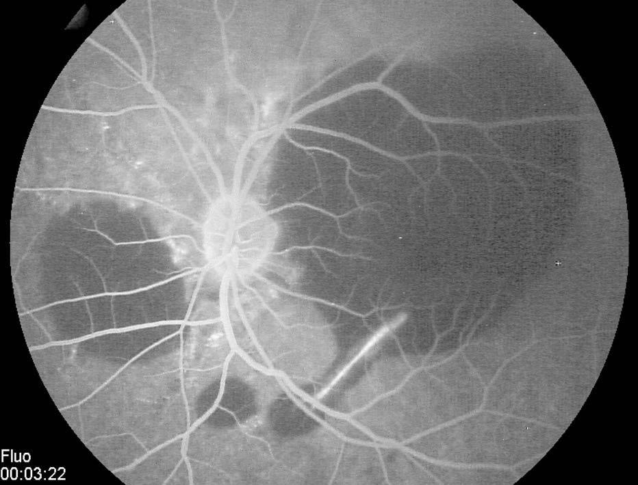 Figure 3 Fluorescein Angiography Of The Left Eye Showing Staining Along With Bruchs Membrane Rupture