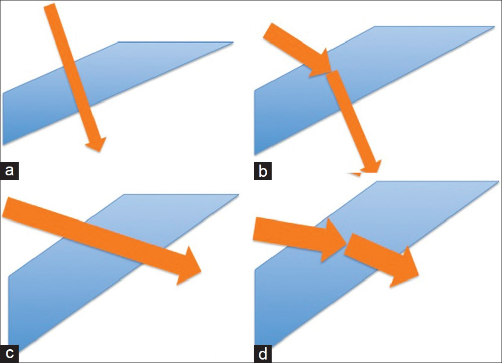 Figure 6: Graphic representation of various single-step entry techniques. (a) Perpendicular entry, (b) Angled entry, (c) Zorro's incision, 6d: Pollack's incision