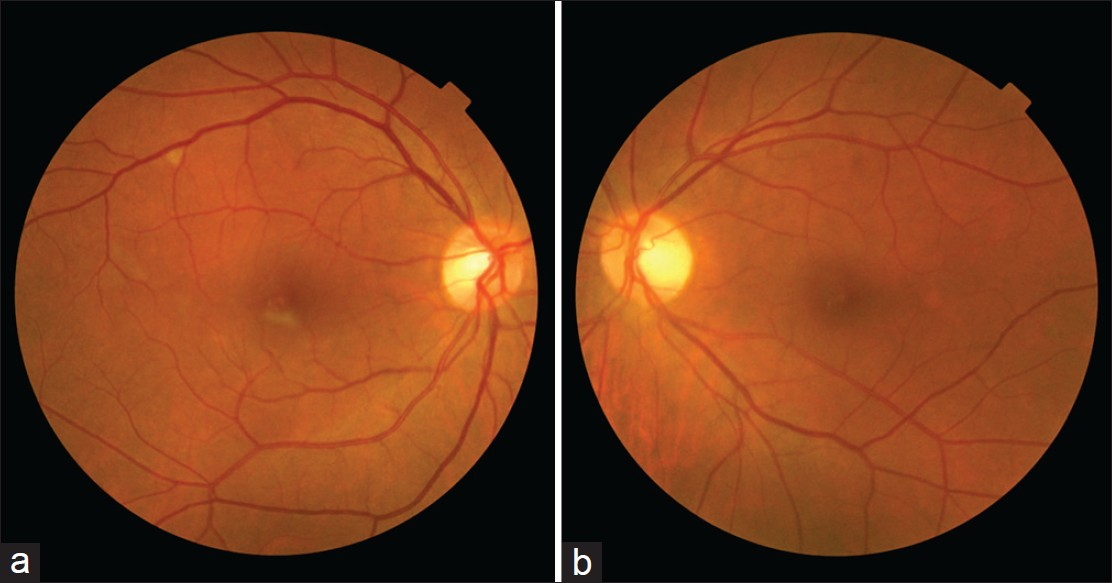 Isolated retinal cotton wool spot after coronary ...
