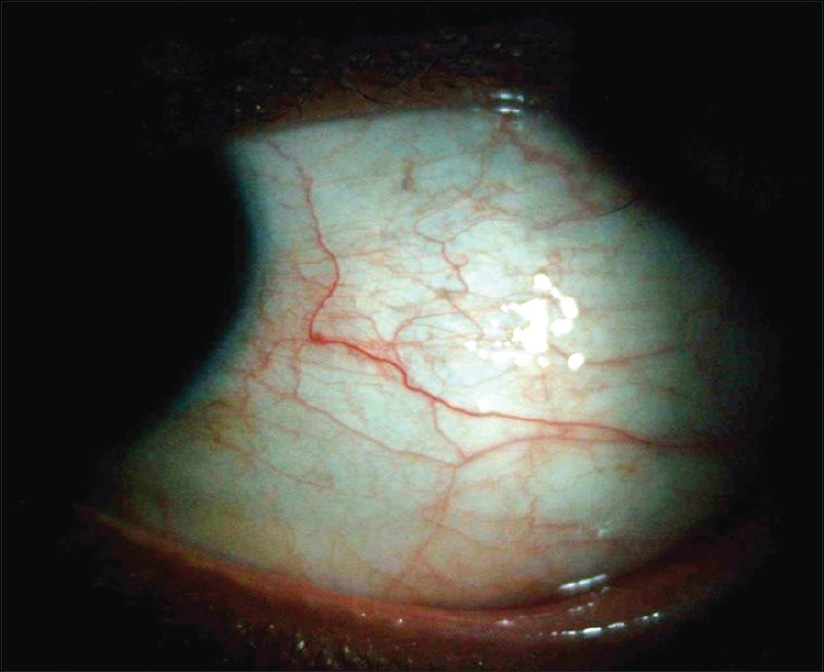 Figure 2: Complete resolution of episcleritis after topical corticosteroid therapy in a patient with well controlled systemic lupus erythematosus who had undergone laser <i>in situ</i> keratomileusis