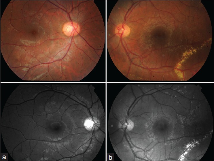 Figure 1: Color fundus photograph (a) Normal right eye and (b) Left eye hard exudate deposition in the inferior temporal macula