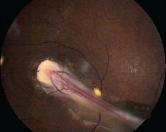 Figure 2 Fundus Photo Of Case 1 Showing Dragging Disc With A Knife