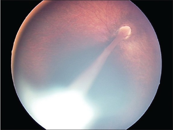 Figure 2: Right eye fundus photograph