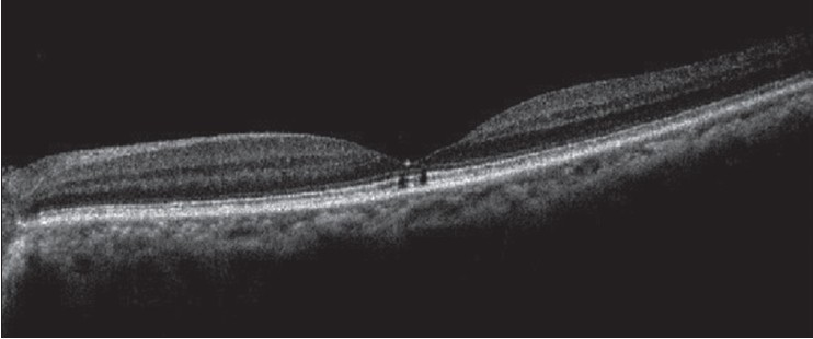 Figure 1: SD-OCT line scan of the left eye showing central foveal thinning along with two hypo-refl ective vertical band, which depict the photoreceptor damage and disruption of the inner-and outer-segment (IS– OS) junction