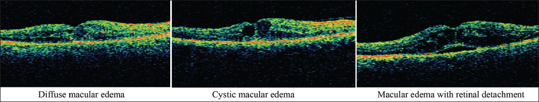Figure 4: Differentiation of different types of diabetic macular edema as seen by optical coherence  tomography