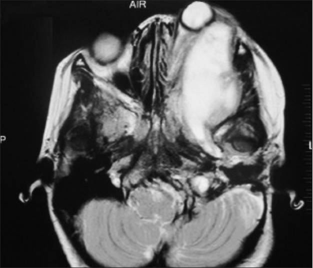 cranio-orbital-temporal neurofibromatosis: an uncommon subtype of, Human Body