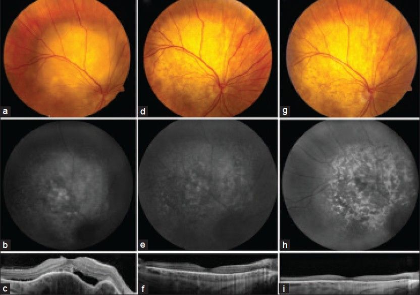 Figure 1: Choroidal metastasis from lung adenocarcinoma. Fundus examination (a) showed a 10 × 8 × 4.8 mm juxtapapillary choroidal mass with subretinal fluid with (b) slight hyperautofluorescence and (c) subretinal fluid and undulating choroidal mass on enhanced depth imaging optical coherence tomography (EDI-OCT). Complete regression of tumor and subretinal fluid (d, e, f) was seen two weeks after starting treatment with oral erlotinib with persistent regression (g, h, i) at five months follow-up