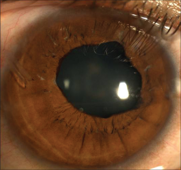 Figure 4: Follow-up at 3 years showing patent tube and well formed anterior chamber