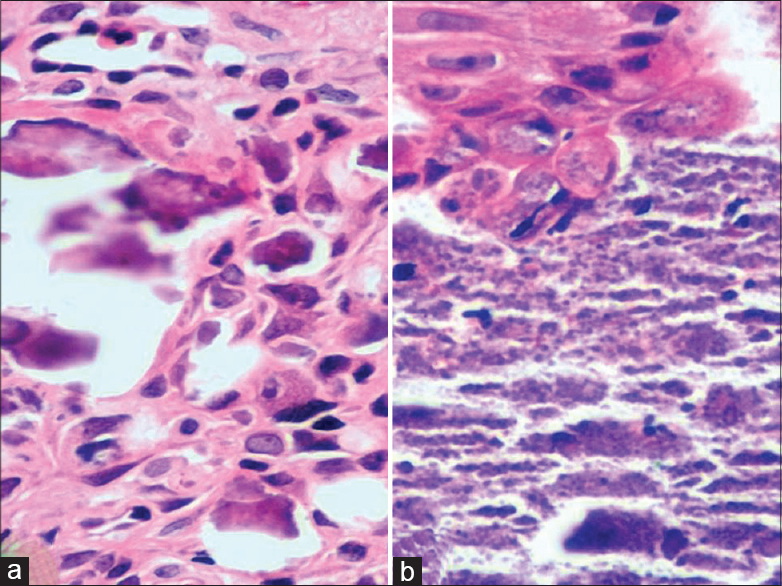 Subepidermal calcified nodule in upper eyelid: A case report