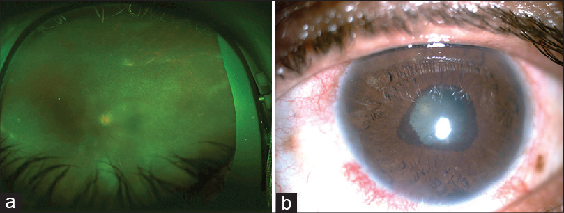 Figure 1: (a) Healed retinitis in left eye of case 1 with pigmentation and only island of the posterior retina remaining with arteriolar involvement (b) Small pupil with extensive posterior synechia with posterior subcapsular cataract