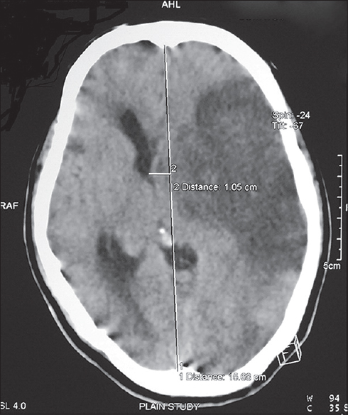 Figure 1: Preoperative CT scan showing left MCA territory infarct with midline shift of 10.5 mm to the right with mass effect on the ventricles
