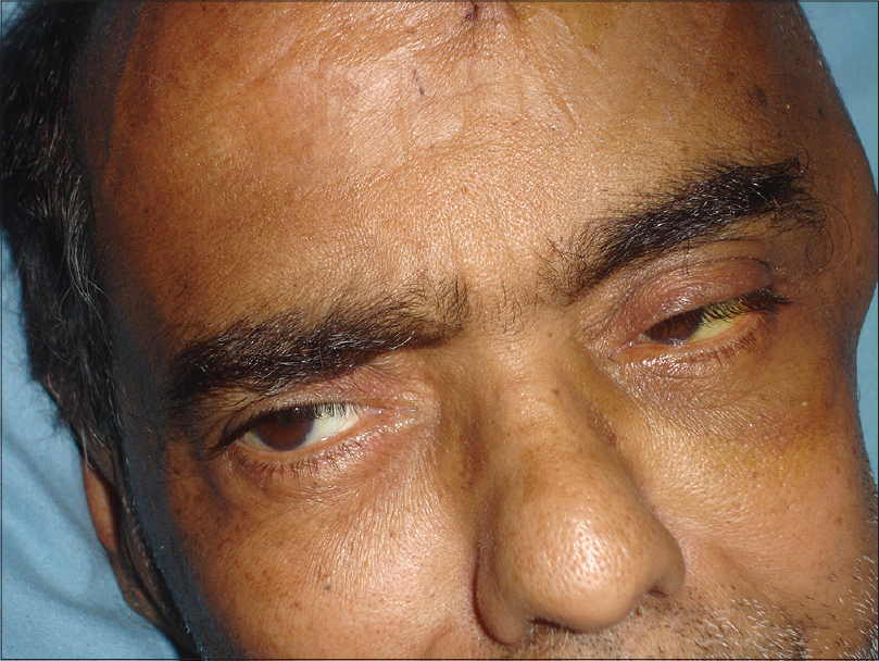 Figure 3: Unilateral [left sided] yellowish discoloration of sclera. The bulge of the decompressive craniotomy is visible on the left side