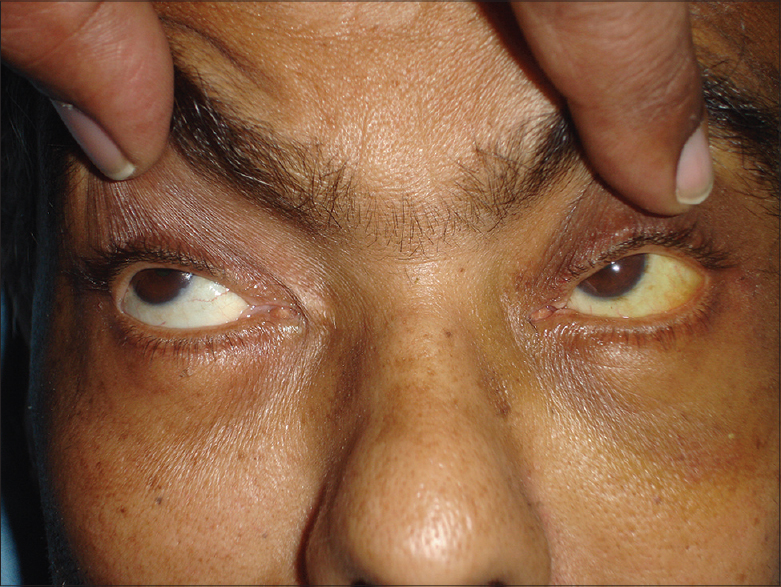 Figure 4: Unilateral [left sided] yellowish discoloration of sclera. The ocular movement clearly shows it is not a