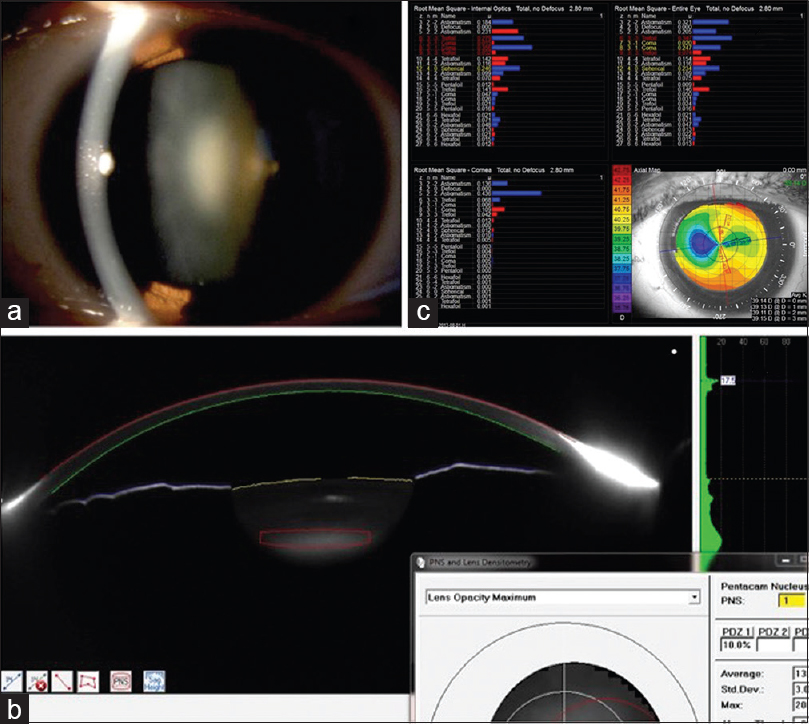 Figure 2: (a) Slit lamp photo showing nuclear sclerosis Grade 1, (b) Pentacam lens densitometry showing increased lens density and a Pentacam nuclear staging Grade of 1, (c) Increase in internal higher order aberrations, especially spherical aberration, trefoil, and tetrafoil on iTrace aberrometry