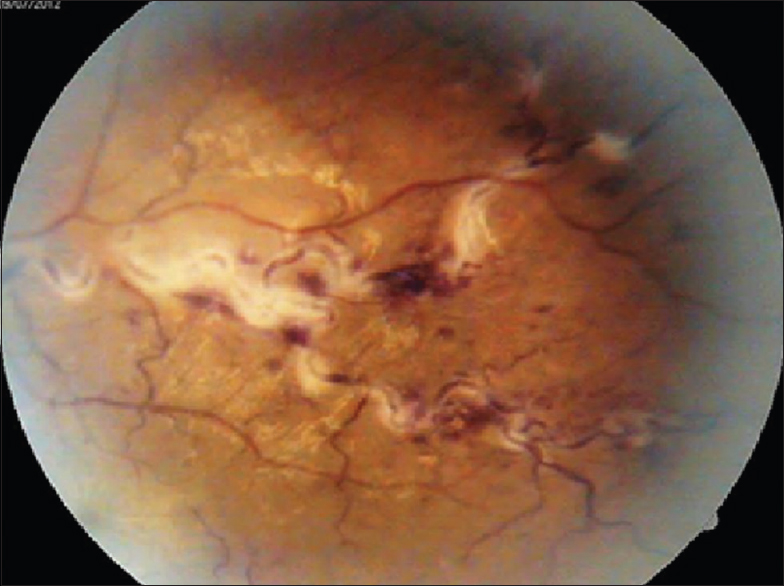 Figure 2: Fundus photograph of superotemporal quadrant with superficial hemorrhages and venous sheathing
