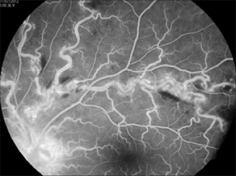 Figure 3: Fundus florescein angiography image showing blocked fluorescence due to superficial hemorrhages along the dilated and tortuous veins