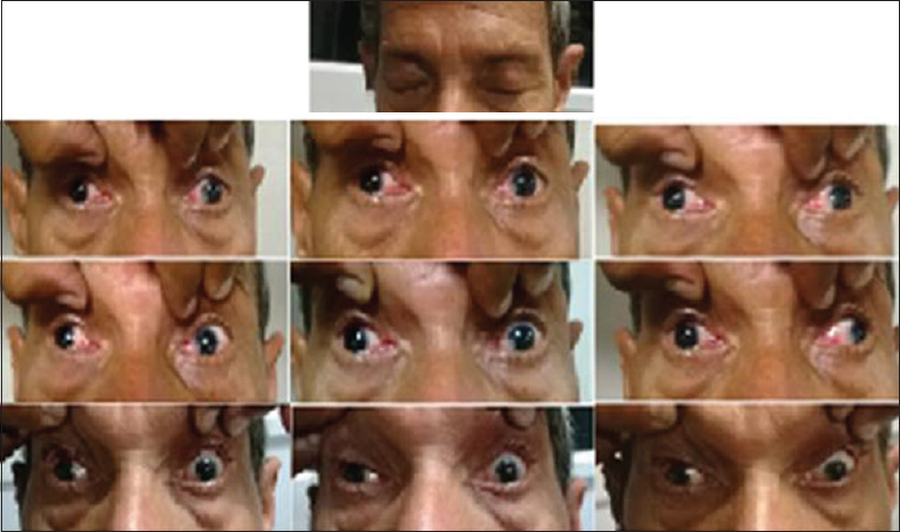 Figure 1: Nine gaze pictures of the patient showing bilateral complete third nerve palsy