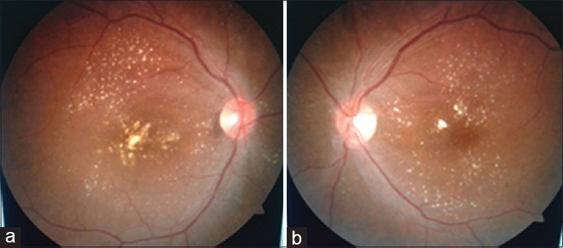 Figure 1: (a) Fundus photograph of the right eye showing hard exudates plaque involving the fovea. (b) Fundus photograph of the left eye showing multiple hard exudates at macula