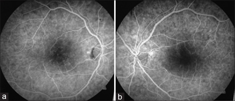 Figure 3: (a) Fundus fluorescein angiography of the right eye shows distorted and enlarged foveal avascular zone with capillary drop out, suggestive of ischemic maculopathy along with hard exudates taking up the stain at the fovea. (b) Fundus fluorescein angiography of the left eye shows distorted and enlarged foveal avascular zone with capillary drop out, suggestive of ischemic maculopathy along with hard exudates taking up the stain in macular area