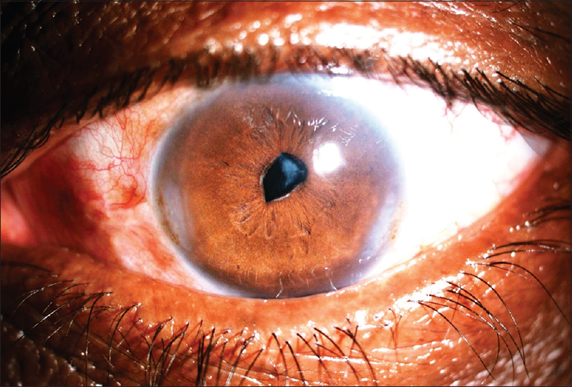 Figure 4: Preoperative slit lamp image of a patient before glued intraocular lens implantation
