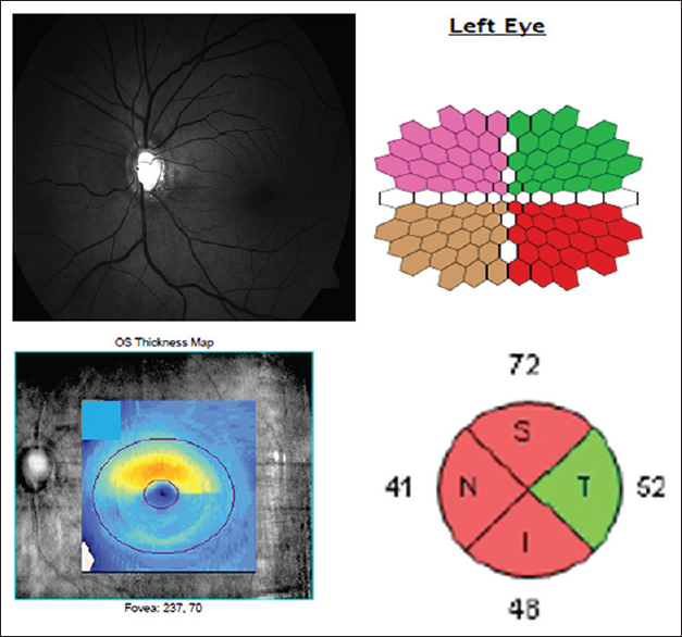 Figure 1: Top left panel shows the fundus photograph of a patient with moderate glaucoma in the left eye showing inferior notch and retinal nerve fiber layer defect and superior rim loss with associated quadrant-wise comparison of multifocal electroretinogram responses (each quadrant therefore containing 22 responses each as shown in top right panel) compared with macular cube showing ganglion cell-inner plexiform layer thickness (bottom left panel showing inferior thinning) and quadrant-wise retinal nerve fiber layer thickness (bottom right panel)