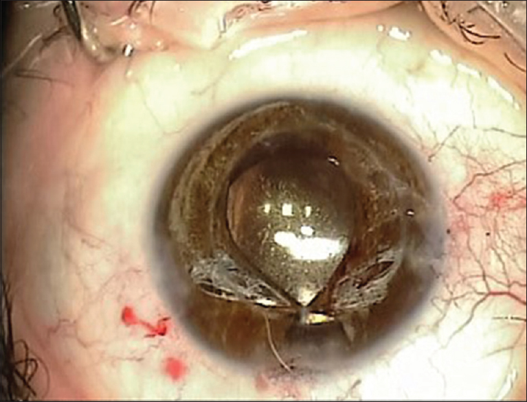 Figure 2: Superior pupillary margin created after placing the first iris suture
