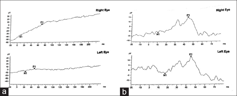 Figure 1: Electroretinograms of both eyes showing the (a) rod and (b) cone response