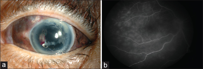 Figure 1: (a) Blunt trauma of the left eye with complete avulsion of iris. (b) Fundus fluorescein angiography (early phase) of the right eye showing multiple leakages
