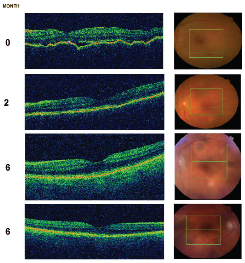 Figure 2: Optical coherence tomography images at presentation and during the follow up period. At presentation, significant retinal pigment epithelium irregularities were present while restoration of RPE integrity was achieved after treatment and subsequent improvement of visual acuity. In the third column, fundus images are presented, showing similarities of this clinical entity with Vogt-Koyanagi-Harada (VKH) syndrome