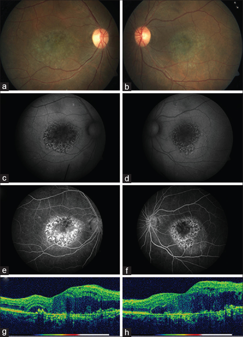 Figure 1: Fundus images of the right (a) and left (b) eyes showing round yellow-speckled area of atrophy at the macular region. The temporal rims of this circular area are slightly elevated. (c and d) Show autofluorescence images of right and left eyes, respectively. Centrally, there is absence of autofluorescence indicating retinal pigment epithelial atrophy. The surrounding area shows spotted pattern of hypo- and hyper-autofluorescence resembling a leopard's skin. Temporal rims show tiny speckled hyperautofluorescence. (e and f) Show mid-phase photographs of fluorescein angiography showing a similar pattern without any leakage or pooling of dye. Spectral-domain optical coherence tomography images of the right (g) and left (h) eyes show retinal thickening, intraretinal fluid spaces, disorganization of the outer retina, and thinning and atrophy of the photoreceptor and retinal pigment epithelial layers. Deposition of moderate reflective material can be seen under the retina