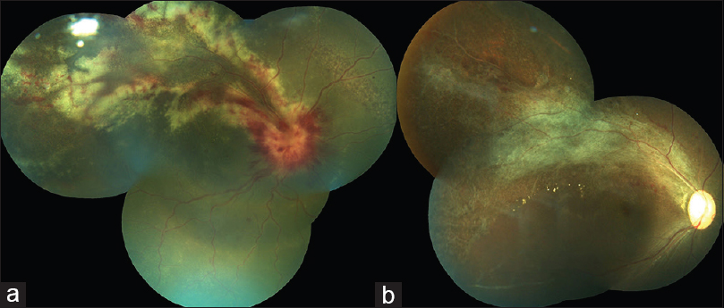 Figure 1: (a) At presentation, the right eye showed swelling of the optic disc with surrounding intraretinal hemorrhages, and superotemporal whitened retina with intraretinal hemorrhages suggestive of active zone 1 cytomegalovirus retinitis. (b) At 3 months' follow-up, the retinitis resolved leading to optic disc pallor, arteriolar attenuation, and mild pigmentary changes at the superotemporal fundus