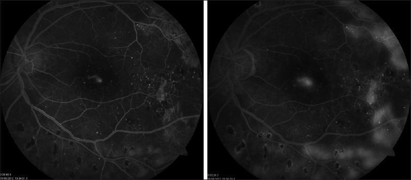 Figure 2: Fluorescein angiography of the left eye showing proliferative diabetic retinopathy with neovascularization at the fovea and enlarged foveal avascular zone